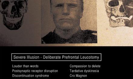 "Severe Illusion, ""Deliberate Prefontal Leucotomy"""